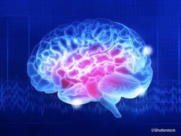 運動で頭がよくなる? 最新脳科学が解き明かした、運動と脳の意外な関係